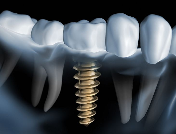Implant Dentistry - Photo 02